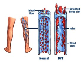 Blood Clots in Legs