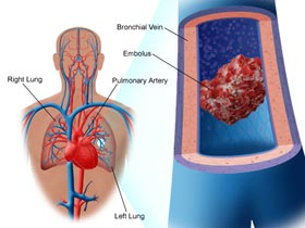 Blood Clots in Lungs